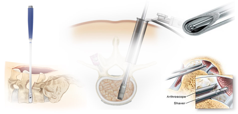 Minimally Invasive Surgery | Arthroscopy